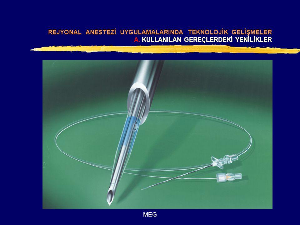 MEG REJYONAL ANESTEZİ UYGULAMALARINDA TEKNOLOJİK GELİŞMELER B.