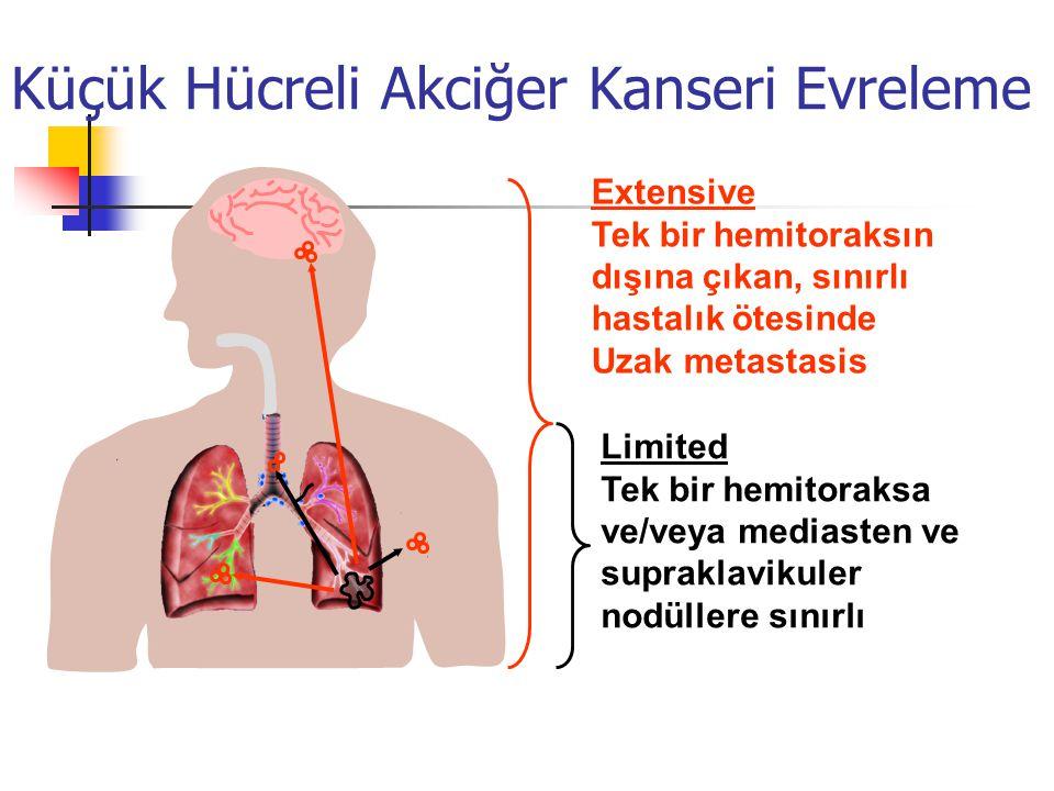 Küçük Hücreli Akciğer Kanseri Evreleme Extensive Tek bir hemitoraksın dışına çıkan, sınırlı hastalık ötesinde Uzak metastasis Limited Tek bir hemitoraksa ve/veya mediasten ve supraklavikuler nodüllere sınırlı