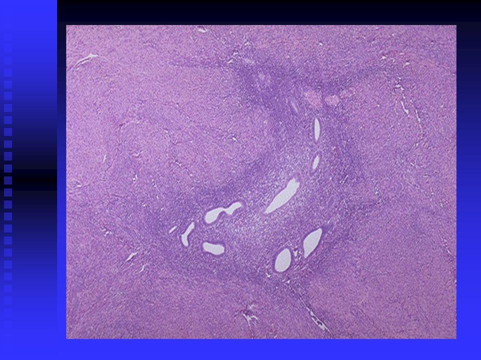 Mikroskopi: Mikroskopi: Geniş eozinofilik sitoplazmalı iğsi hücrelerden oluşur.