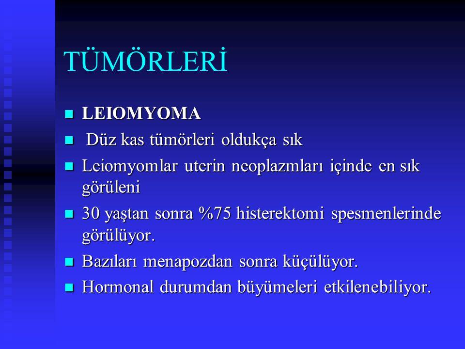 TÜMÖRLERİ LEIOMYOMA LEIOMYOMA Düz kas tümörleri oldukça sık Düz kas tümörleri oldukça sık Leiomyomlar uterin neoplazmları içinde en sık görüleni Leiomyomlar uterin neoplazmları içinde en sık görüleni 30 yaştan sonra %75 histerektomi spesmenlerinde görülüyor.
