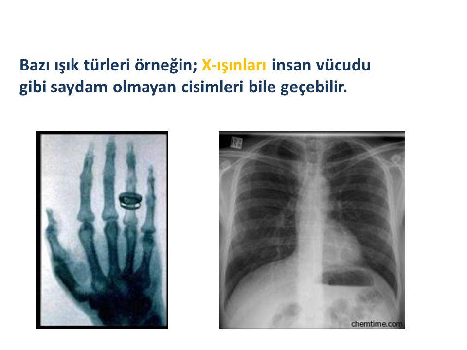 Bazı ışık türleri örneğin; X-ışınları insan vücudu gibi saydam olmayan cisimleri bile geçebilir.