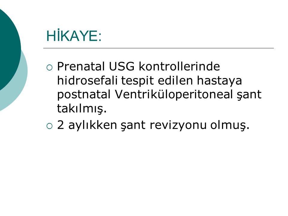 HİKAYE:  Prenatal USG kontrollerinde hidrosefali tespit edilen hastaya postnatal Ventriküloperitoneal şant takılmış.