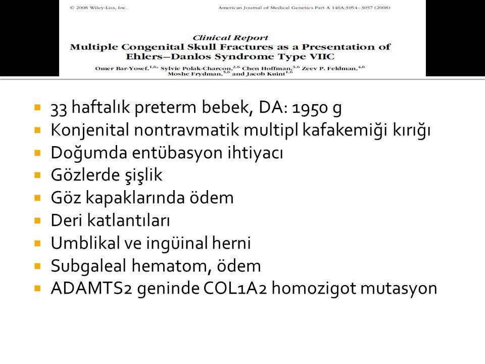  33 haftalık preterm bebek, DA: 1950 g  Konjenital nontravmatik multipl kafakemiği kırığı  Doğumda entübasyon ihtiyacı  Gözlerde şişlik  Göz kapaklarında ödem  Deri katlantıları  Umblikal ve ingüinal herni  Subgaleal hematom, ödem  ADAMTS2 geninde COL1A2 homozigot mutasyon