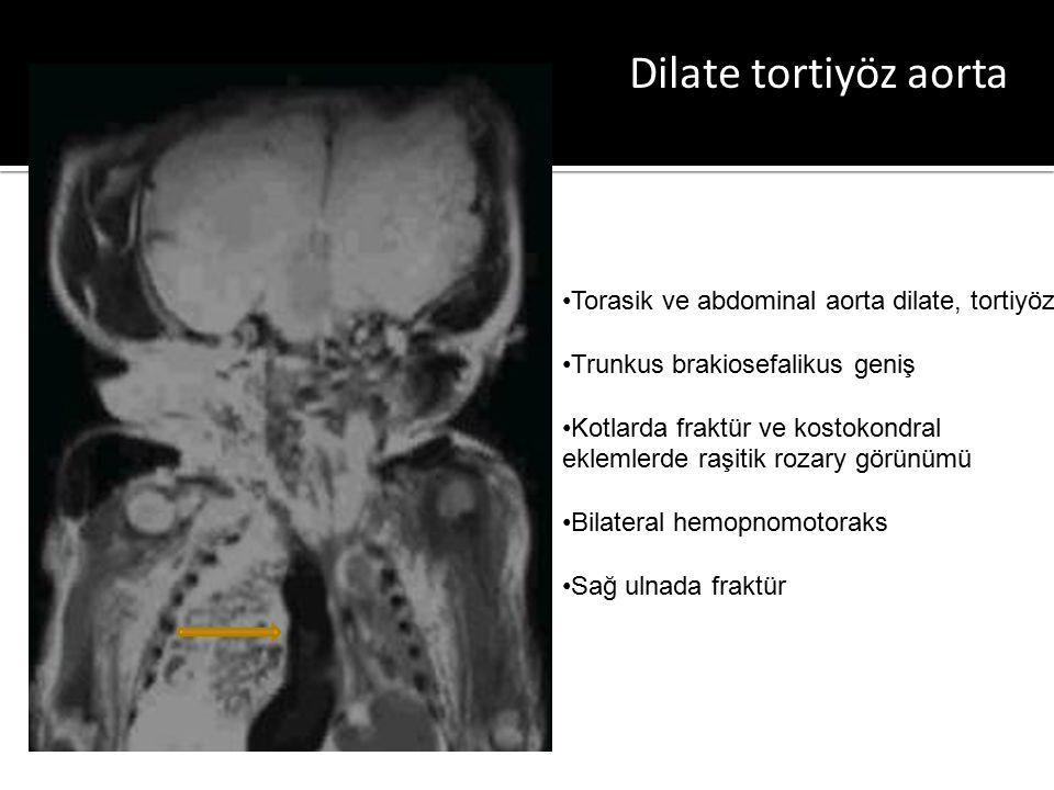 Dilate tortiyöz aorta Torasik ve abdominal aorta dilate, tortiyöz Trunkus brakiosefalikus geniş Kotlarda fraktür ve kostokondral eklemlerde raşitik rozary görünümü Bilateral hemopnomotoraks Sağ ulnada fraktür