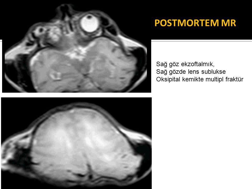 POSTMORTEM MR Sağ göz ekzoftalmık, Sağ gözde lens sublukse Oksipital kemikte multipl fraktür