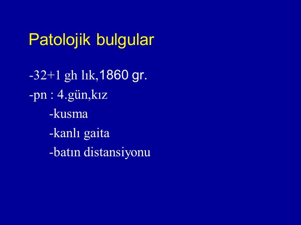 Patolojik bulgular -32+1 gh lık, 1860 gr. -pn : 4.gün,kız -kusma -kanlı gaita -batın distansiyonu