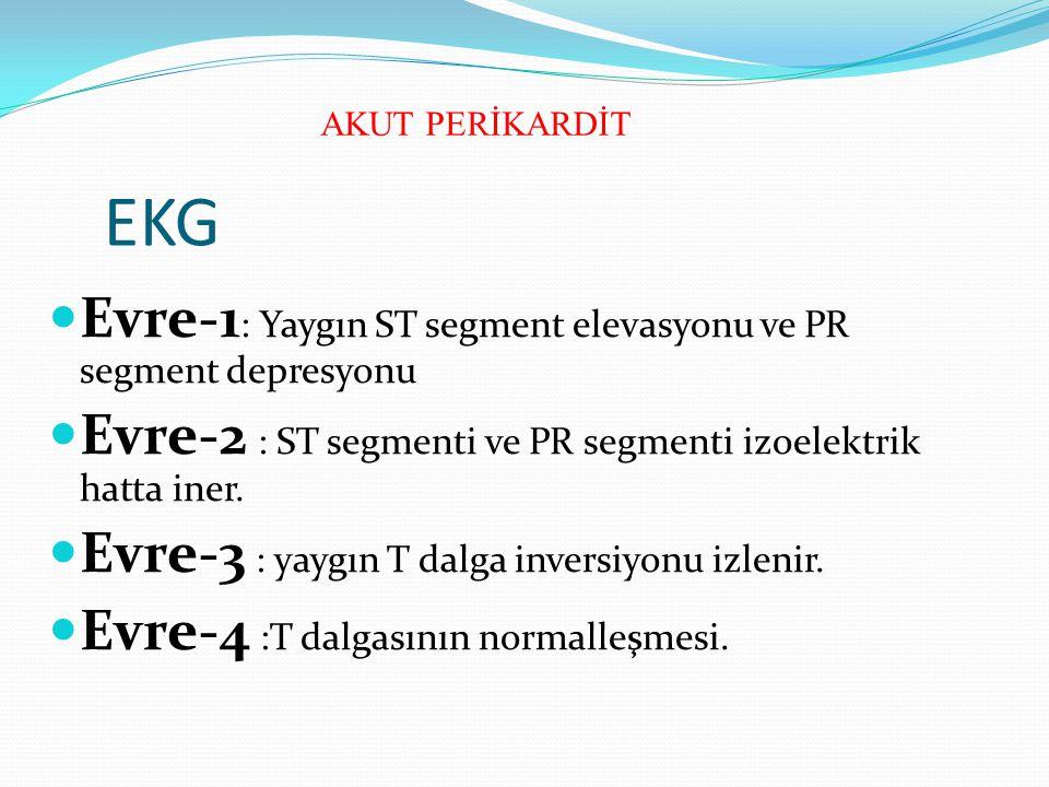EKG Evre-1 : Yaygın ST segment elevasyonu ve PR segment depresyonu Evre-2 : ST segmenti ve PR segmenti izoelektrik hatta iner. Evre-3 : yaygın T dalga