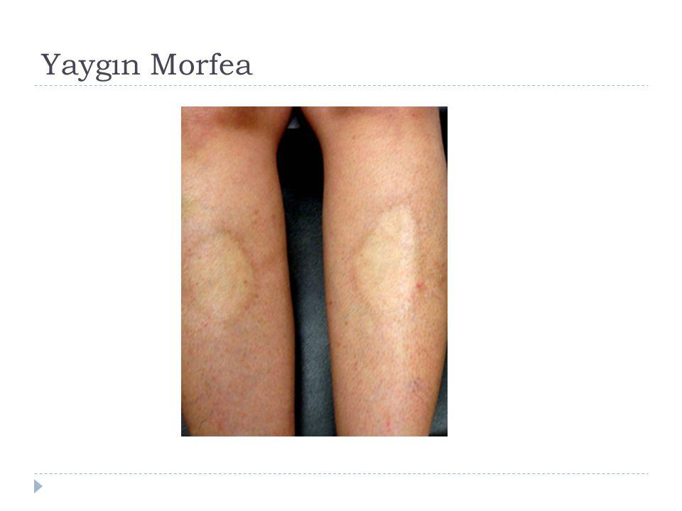 Yaygın Morfea