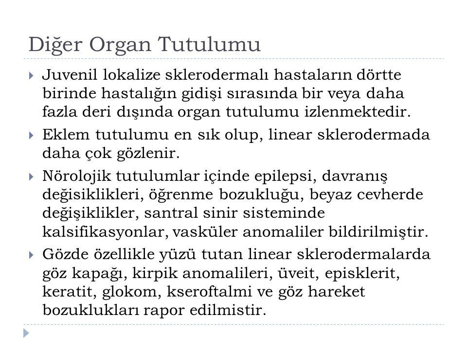 Diğer Organ Tutulumu  Juvenil lokalize sklerodermalı hastaların dörtte birinde hastalığın gidişi sırasında bir veya daha fazla deri dışında organ tut