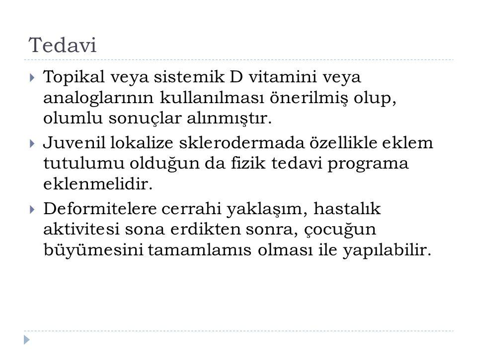 Tedavi  Topikal veya sistemik D vitamini veya analoglarının kullanılması önerilmiş olup, olumlu sonuçlar alınmıştır.  Juvenil lokalize sklerodermada