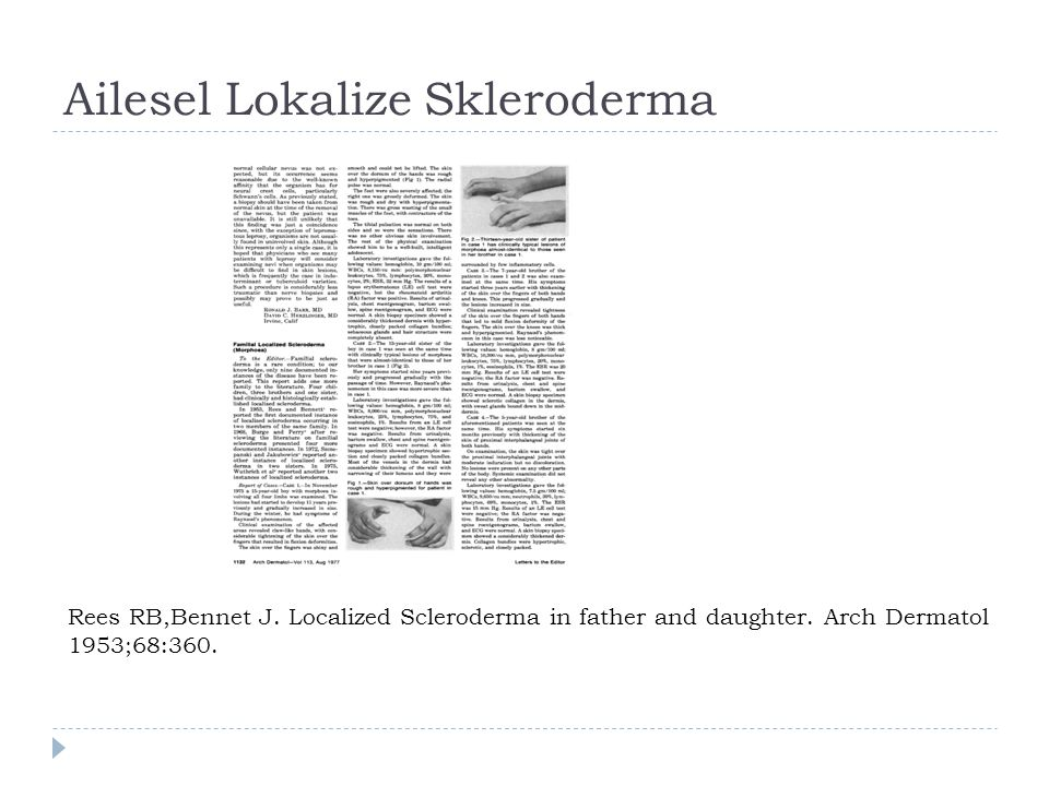 Ailesel Lokalize Skleroderma Rees RB,Bennet J. Localized Scleroderma in father and daughter. Arch Dermatol 1953;68:360.