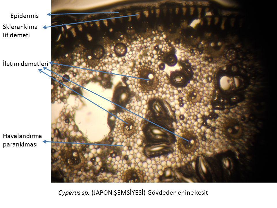 Cyperus sp. (JAPON ŞEMSİYESİ)-Gövdeden enine kesit Epidermis Sklerankima lif demeti İletım demetleri Havalandırma parankiması