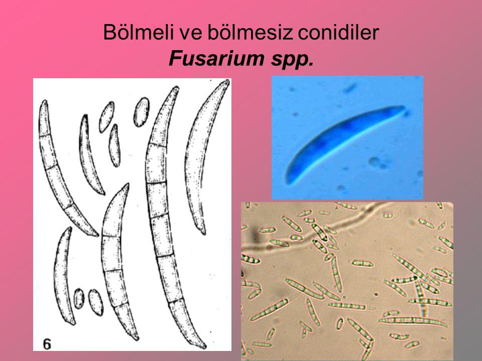 Funguslarda somatik yapılar Sporangiophore: Ucunda spor taşıyan fungus thallusuna denir.