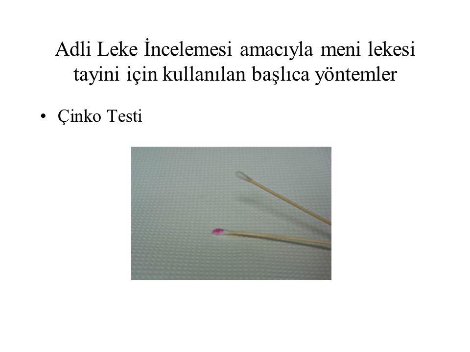 Adli Leke İncelemesi amacıyla meni lekesi tayini için kullanılan başlıca yöntemler Çinko Testi