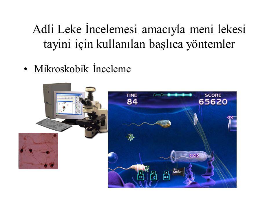 Adli Leke İncelemesi amacıyla meni lekesi tayini için kullanılan başlıca yöntemler Mikroskobik İnceleme