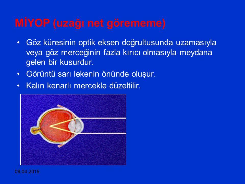 09.04.2015 MİYOP (uzağı net görememe) Göz küresinin optik eksen doğrultusunda uzamasıyla veya göz merceğinin fazla kırıcı olmasıyla meydana gelen bir