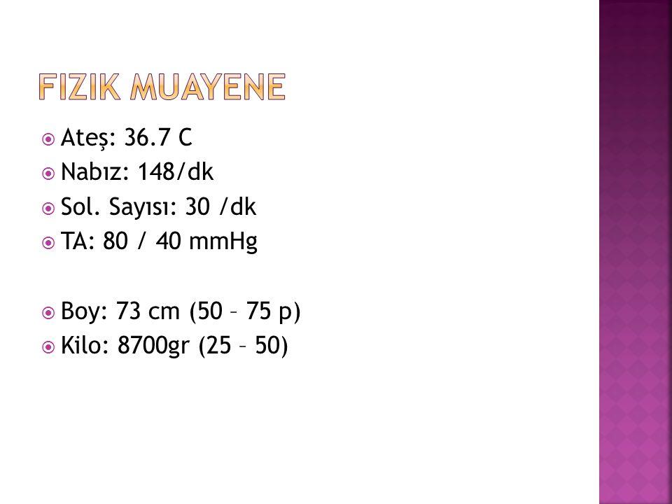  Ateş: 36.7 C  Nabız: 148/dk  Sol.