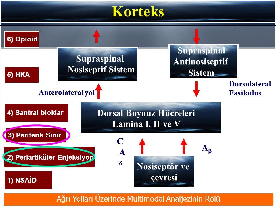 Korteks Supraspinal Nosiseptif Sistem Dorsal Boynuz Hücreleri Lamina I, II ve V Anterolateral yol Supraspinal Antinosiseptif Sistem Dorsolateral Fasikulus Ağrı Yolları Üzerinde Multimodal Analjezinin Rolü C AA AA Nosiseptör ve çevresi 3) Periferik Sinir 1) NSAİD 5) HKA 6) Opioid 4) Santral bloklar 2) Periartiküler Enjeksiyon
