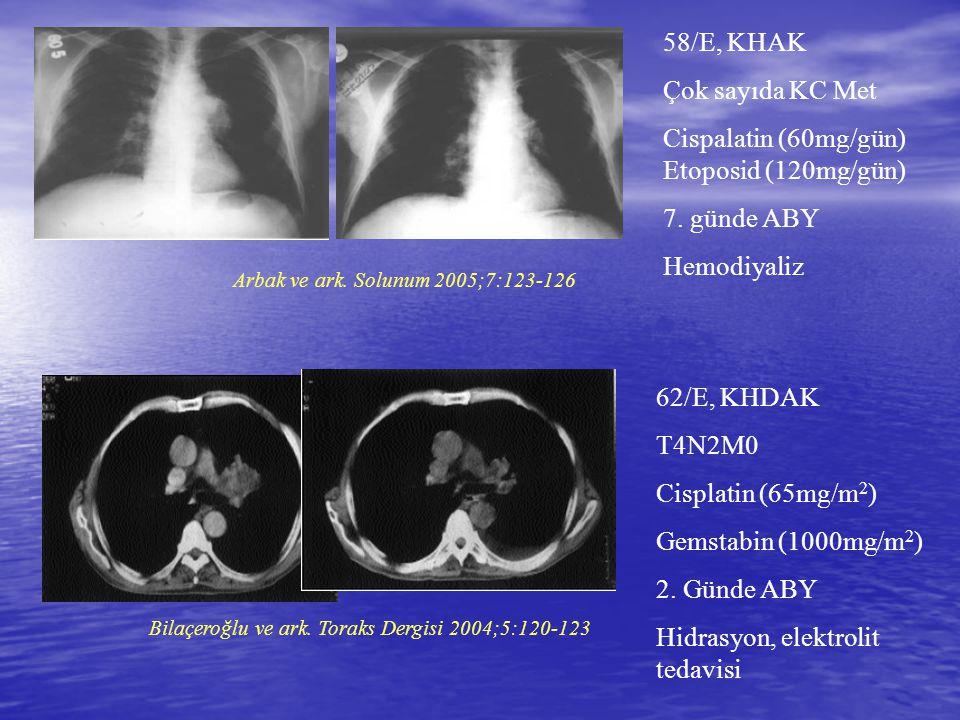 58/E, KHAK Çok sayıda KC Met Cispalatin (60mg/gün) Etoposid (120mg/gün) 7. günde ABY Hemodiyaliz Arbak ve ark. Solunum 2005;7:123-126 62/E, KHDAK T4N2