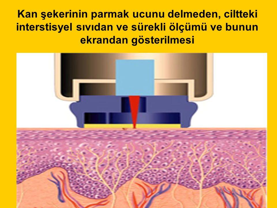 Kan şekerinin parmak ucunu delmeden, ciltteki interstisyel sıvıdan ve sürekli ölçümü ve bunun ekrandan gösterilmesi