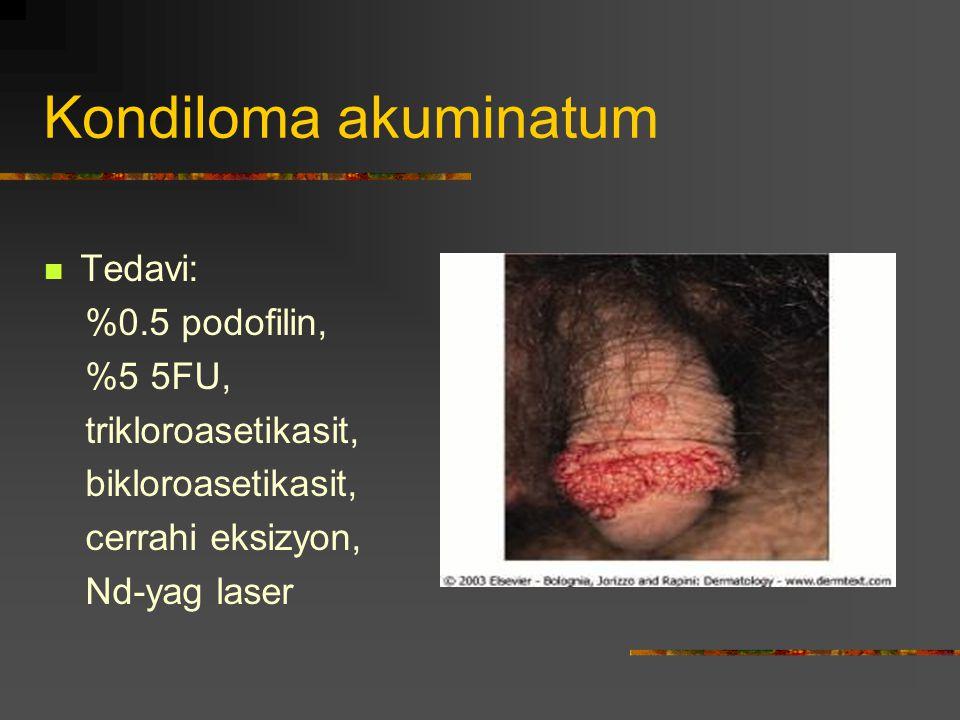 Kondiloma akuminatum Tedavi: %0.5 podofilin, %5 5FU, trikloroasetikasit, bikloroasetikasit, cerrahi eksizyon, Nd-yag laser