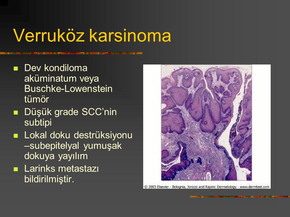 Verruköz karsinoma Dev kondiloma aküminatum veya Buschke-Lowenstein tümör Düşük grade SCC'nin subtipi Lokal doku destrüksiyonu –subepitelyal yumuşak d