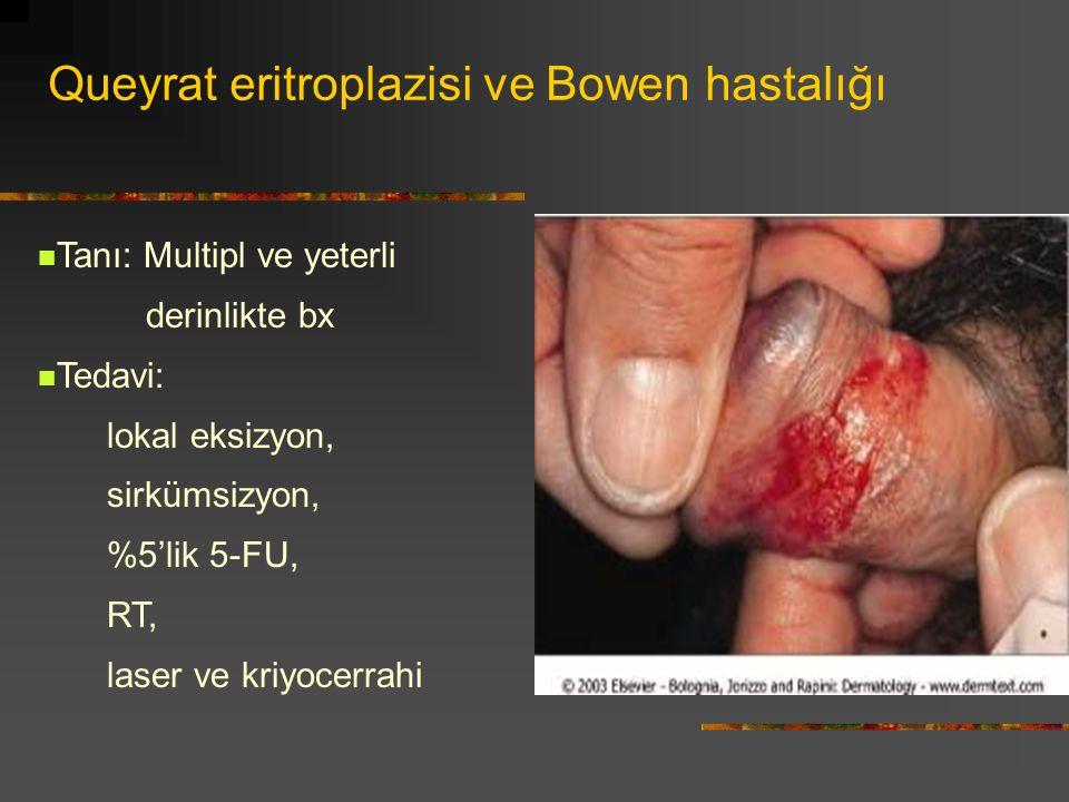 Queyrat eritroplazisi ve Bowen hastalığı Tanı: Multipl ve yeterli derinlikte bx Tedavi: lokal eksizyon, sirkümsizyon, %5'lik 5-FU, RT, laser ve kriyoc