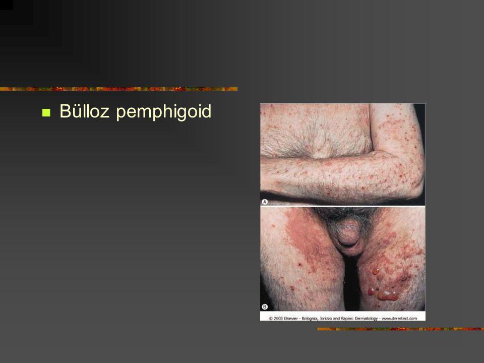 Bülloz pemphigoid