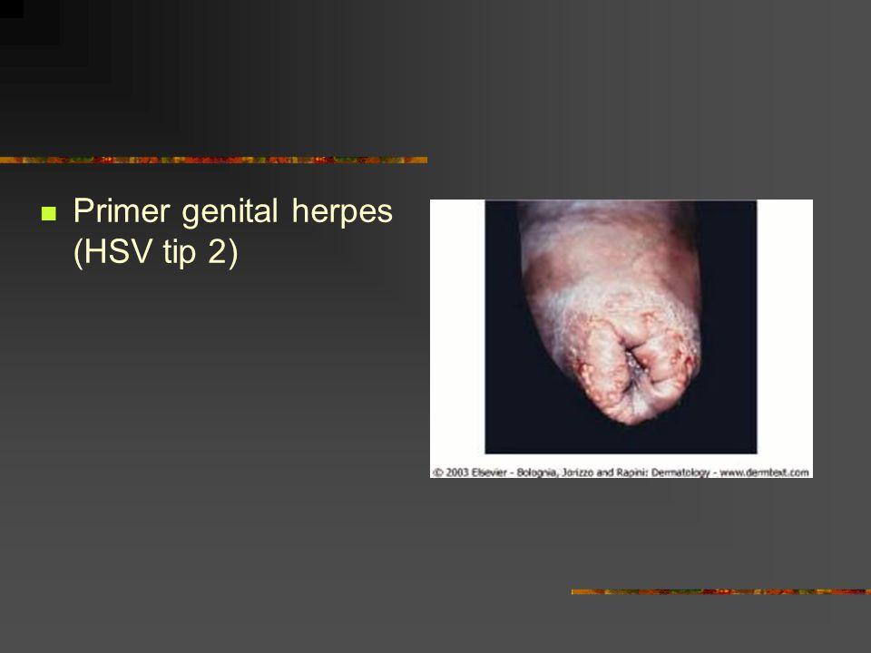 Primer genital herpes (HSV tip 2)