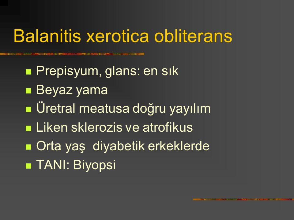 Balanitis xerotica obliterans Prepisyum, glans: en sık Beyaz yama Üretral meatusa doğru yayılım Liken sklerozis ve atrofikus Orta yaş diyabetik erkekl