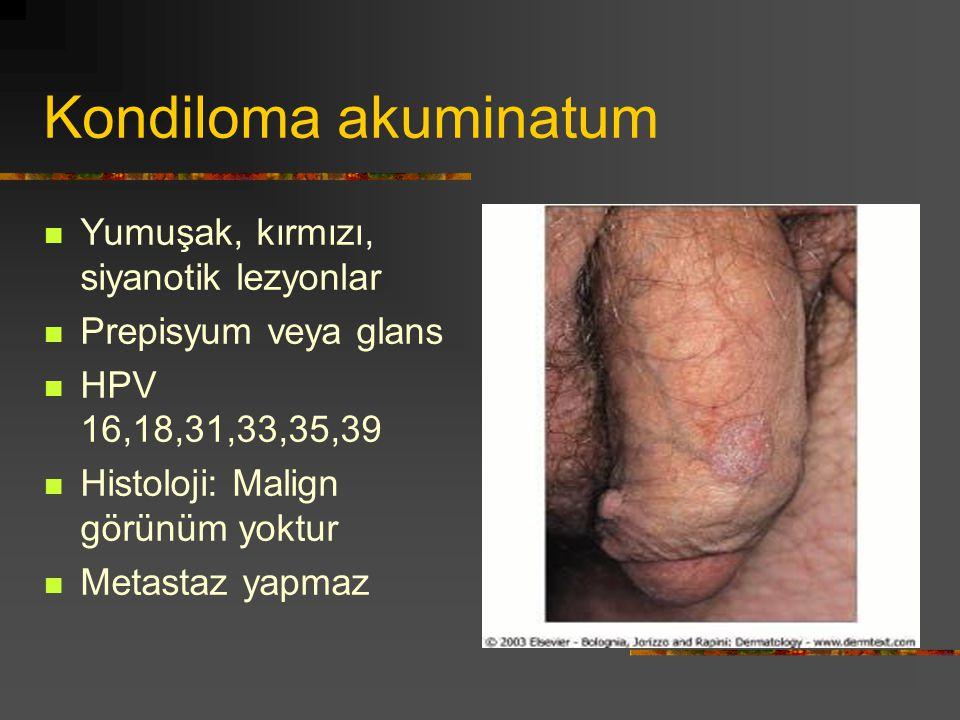 Kondiloma akuminatum Yumuşak, kırmızı, siyanotik lezyonlar Prepisyum veya glans HPV 16,18,31,33,35,39 Histoloji: Malign görünüm yoktur Metastaz yapmaz