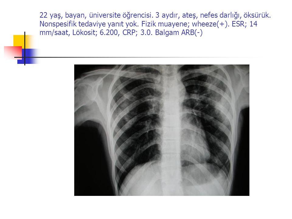 22 yaş, bayan, üniversite öğrencisi. 3 aydır, ateş, nefes darlığı, öksürük. Nonspesifik tedaviye yanıt yok. Fizik muayene; wheeze(+). ESR; 14 mm/saat,