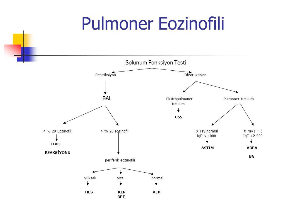Pulmoner Eozinofili Solunum Fonksiyon Testi Restriksiyon Obstruksiyon BAL Ekstrapulmoner Pulmoner tutulum tutulum CSS % 20 eozinofil X-ray normal X-ra
