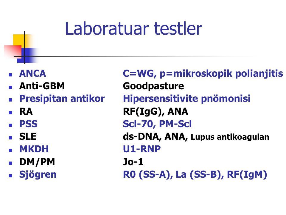 Laboratuar testler ANCA C=WG, p=mikroskopik polianjitis Anti-GBM Goodpasture Presipitan antikor Hipersensitivite pnömonisi RARF(IgG), ANA PSSScl-70, P