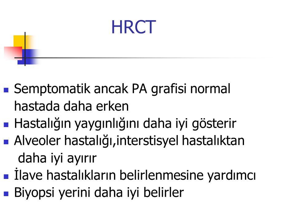 HRCT Semptomatik ancak PA grafisi normal hastada daha erken Hastalığın yaygınlığını daha iyi gösterir Alveoler hastalığı,interstisyel hastalıktan daha