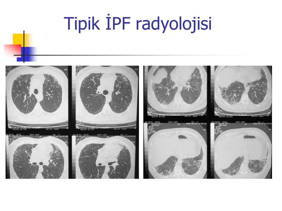 Tipik İPF radyolojisi