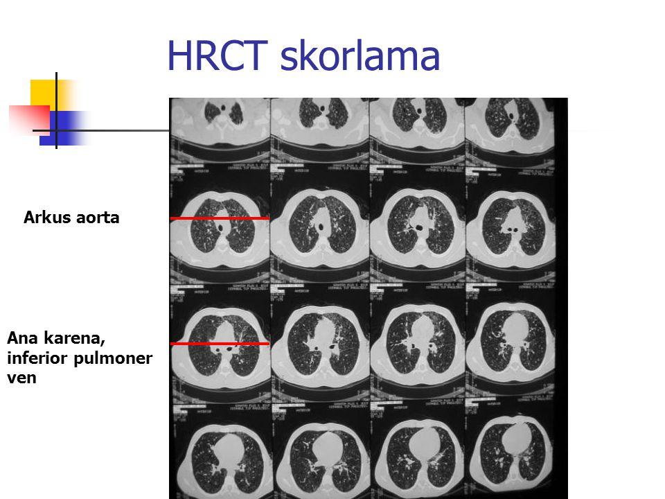 HRCT skorlama Arkus aorta Ana karena, inferior pulmoner ven