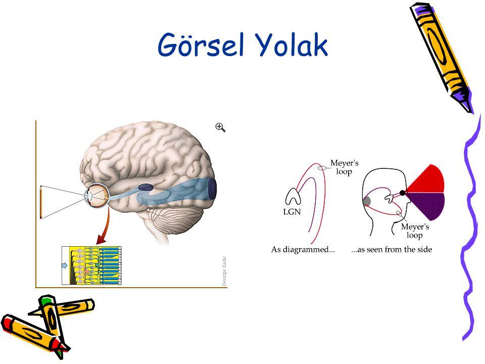 Magnosellüler Kuram Fonolojik kuramı destekler, ancak işitsel ve görsel defisitleri vurgular. Bu kurama göre, lateral genikulat çekirdeğinin hücre tab