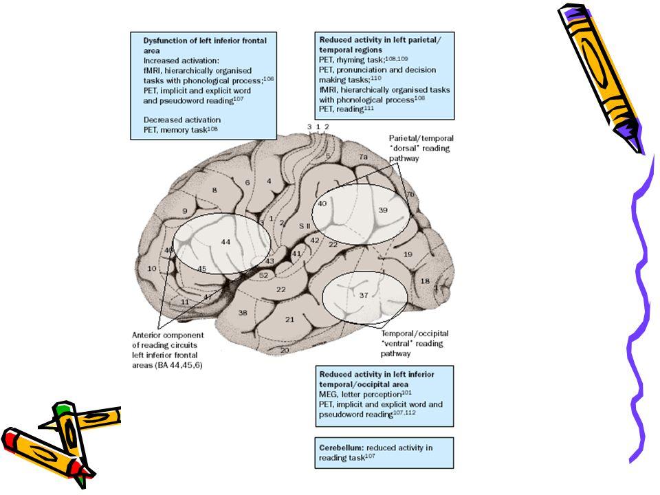 Disleksik Beyin Beyinin ön kısımları arka kısımlarına göre daha aktiftir. Dahada ötesi, araştırıcılar dislektik beyinler normallere göre 5 kat daha ço