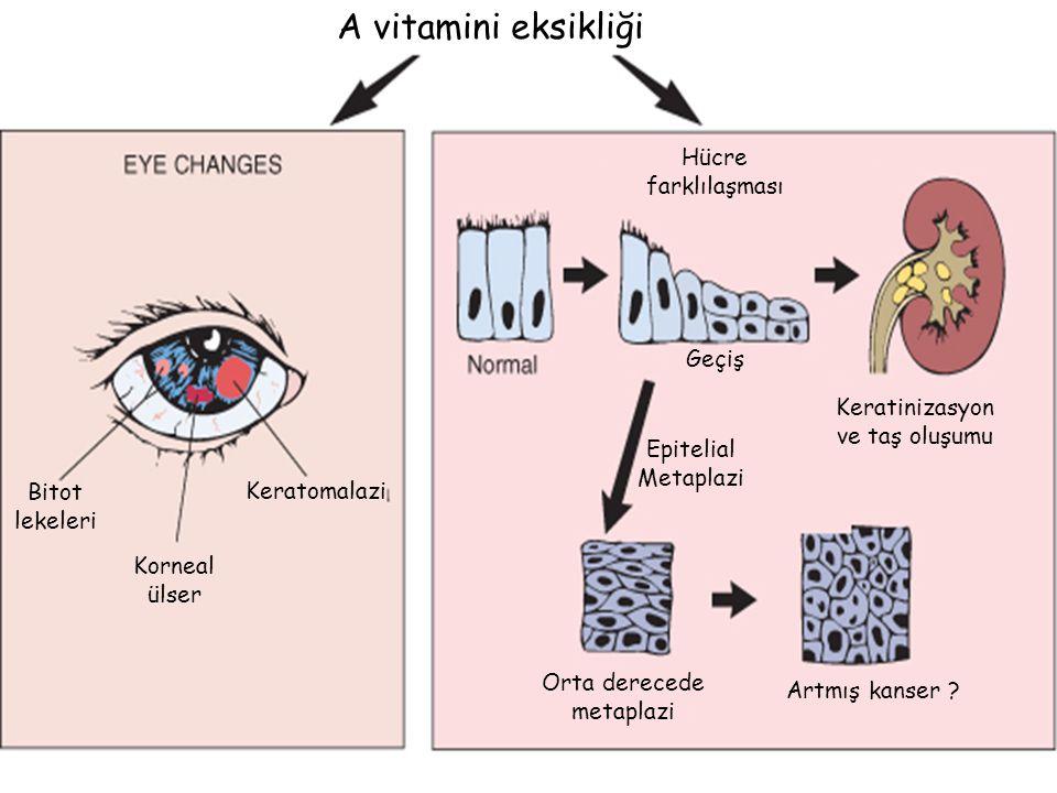 A vitamini eksikliği Bitot lekeleri Korneal ülser Keratomalazi Geçiş Keratinizasyon ve taş oluşumu Orta derecede metaplazi Artmış kanser ? Epitelial M