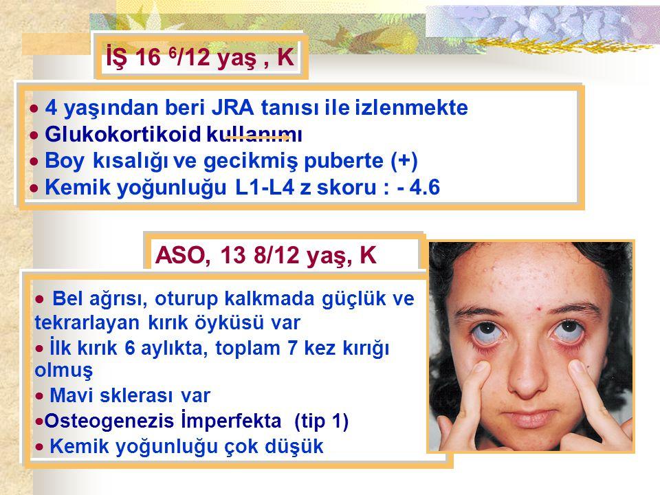 İŞ 16 6 /12 yaş, K  4 yaşından beri JRA tanısı ile izlenmekte  Glukokortikoid kullanımı  Boy kısalığı ve gecikmiş puberte (+)  Kemik yoğunluğu L1-L4 z skoru : - 4.6 ASO, 13 8/12 yaş, K  Bel ağrısı, oturup kalkmada güçlük ve tekrarlayan kırık öyküsü var  İlk kırık 6 aylıkta, toplam 7 kez kırığı olmuş  Mavi sklerası var  Osteogenezis İmperfekta (tip 1)  Kemik yoğunluğu çok düşük