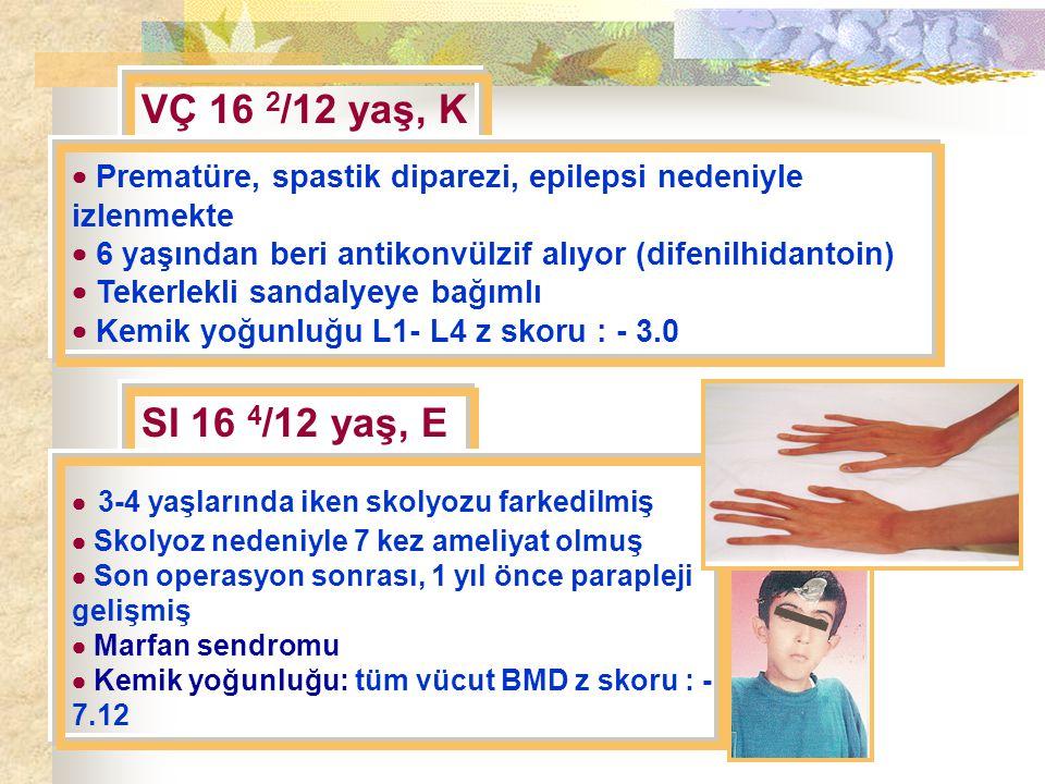 VÇ 16 2 /12 yaş, K  Prematüre, spastik diparezi, epilepsi nedeniyle izlenmekte  6 yaşından beri antikonvülzif alıyor (difenilhidantoin)  Tekerlekli sandalyeye bağımlı  Kemik yoğunluğu L1- L4 z skoru : - 3.0 SI 16 4 /12 yaş, E  3-4 yaşlarında iken skolyozu farkedilmiş  Skolyoz nedeniyle 7 kez ameliyat olmuş  Son operasyon sonrası, 1 yıl önce parapleji gelişmiş  Marfan sendromu  Kemik yoğunluğu: tüm vücut BMD z skoru : - 7.12
