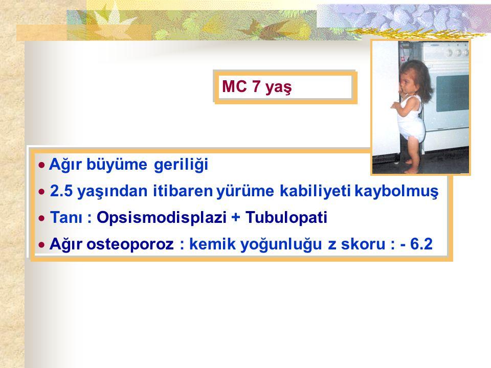 MC 7 yaş  Ağır büyüme geriliği  2.5 yaşından itibaren yürüme kabiliyeti kaybolmuş  Tanı : Opsismodisplazi + Tubulopati  Ağır osteoporoz : kemik yoğunluğu z skoru : - 6.2