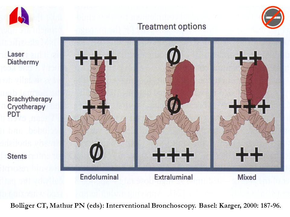 Bolliger CT, Mathur PN (eds): Interventional Bronchoscopy. Basel: Karger, 2000: 187-96.