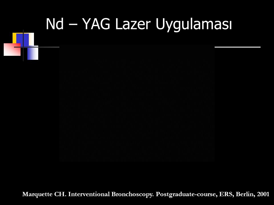 Marquette CH. Interventional Bronchoscopy. Postgraduate-course, ERS, Berlin, 2001 Nd – YAG Lazer Uygulaması