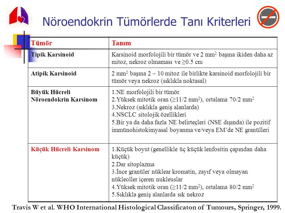 Nöroendokrin Tümörlerde Tanı Kriterleri TümörTanım Tipik KarsinoidKarsinoid morfolojili bir tümör ve 2 mm 2 başına ikiden daha az mitoz, nekroz olmama
