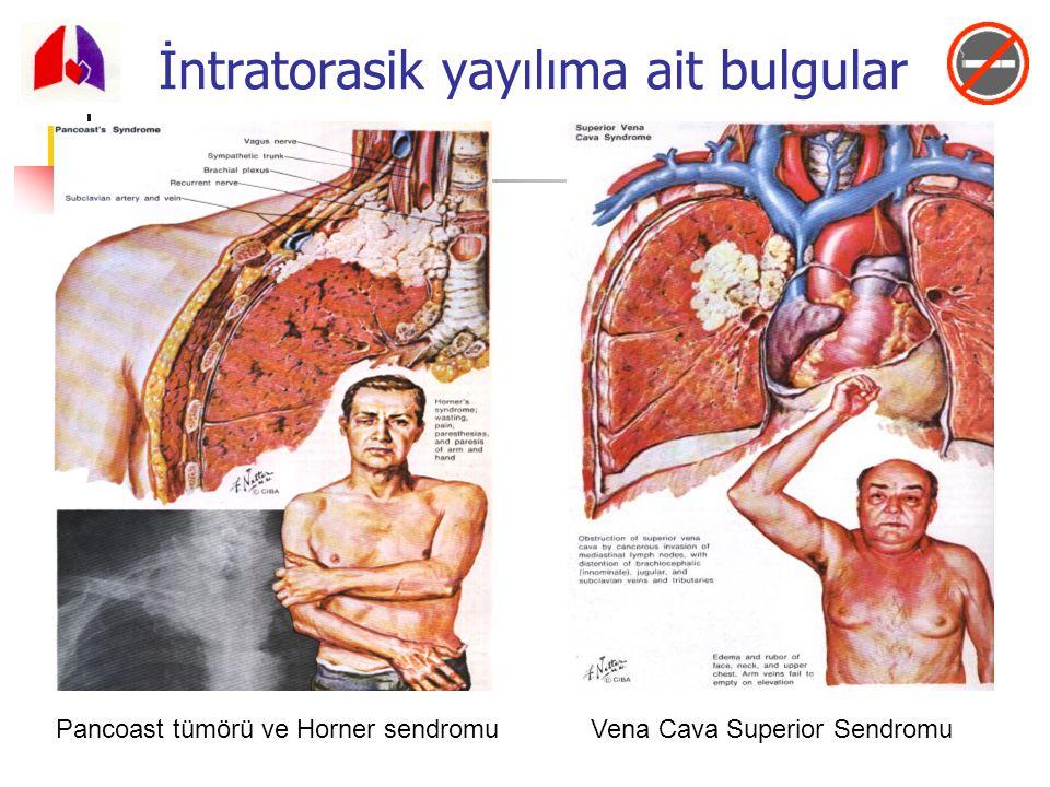 Pancoast tümörü ve Horner sendromu Vena Cava Superior Sendromu İntratorasik yayılıma ait bulgular