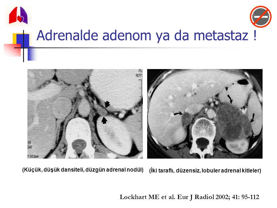 Adrenalde adenom ya da metastaz ! (Küçük, düşük dansiteli, düzgün adrenal nodül) (İki taraflı, düzensiz, lobuler adrenal kitleler) Lockhart ME et al.