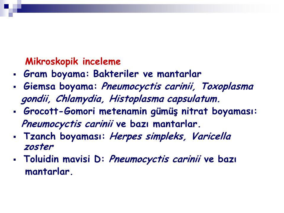 Mikroskopik inceleme  Gram boyama: Bakteriler ve mantarlar  Giemsa boyama: Pneumocyctis carinii, Toxoplasma gondii, Chlamydia, Histoplasma capsulatu