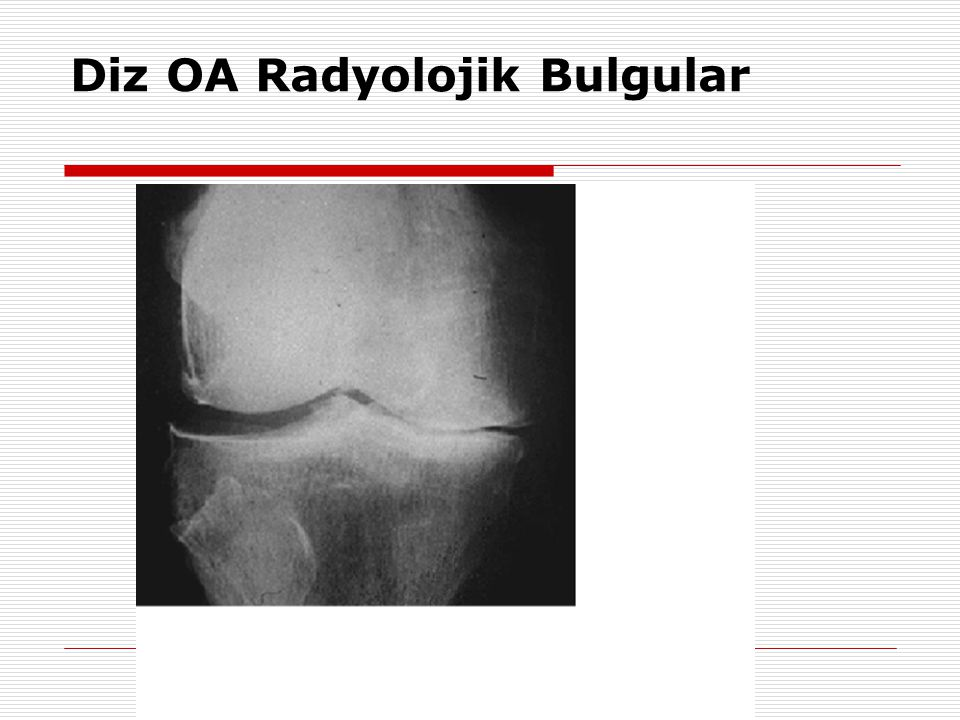 Diz OA Radyolojik Bulgular